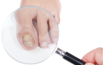 Magnifying Toenail Fungal Infection